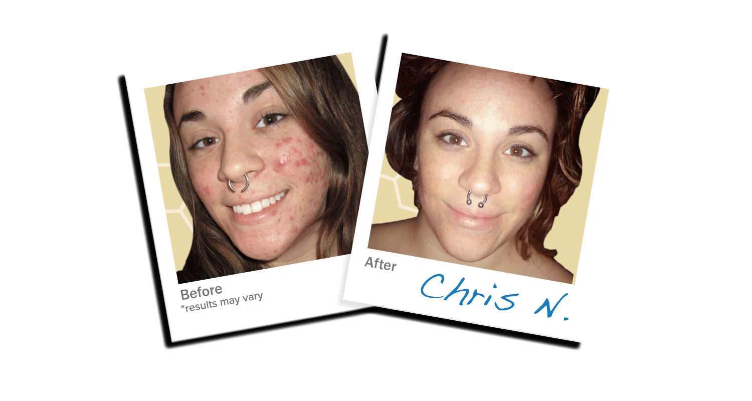 ClearPoint® Acne Supplement