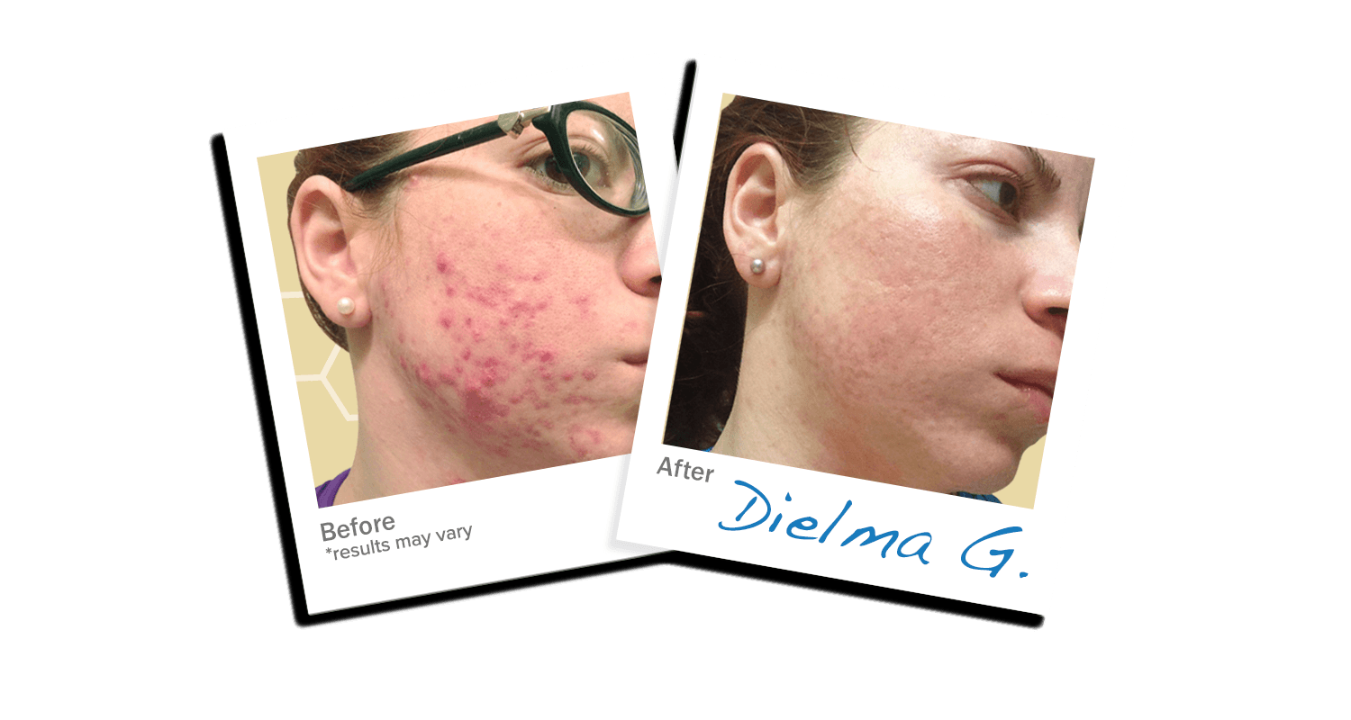 Dielma acne Trial
