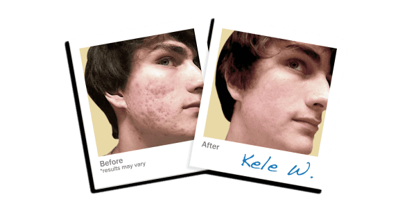 LEROSETT® Acne Review Photo