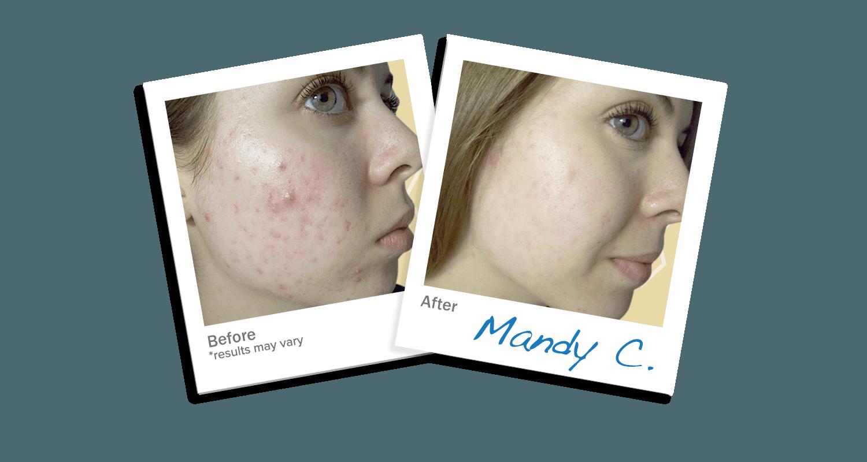 LEROSETT® Botanical Acne Cleanser