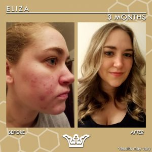 LEROSETT® Best Organic Acne Treatment