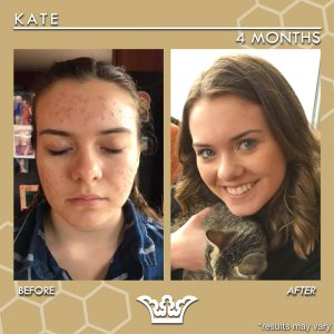 LEROSETT® Best Natural Acne Treatment