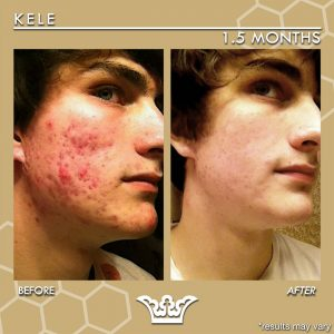 LEROSETT® Best Cystic Acne Treatment