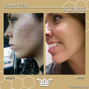 LEROSETT® Best Natural Hormonal Acne Treatment