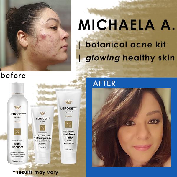 michaela-lerosett-acne-system-best-organic-product